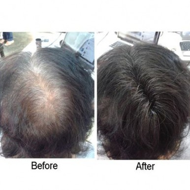 Caboki Hair Loss Concealer Building Fiber - 25g
