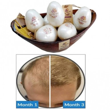 Pack of 7 Amazing Hair Solution Egg Mousse hair loss Evolution make smooth and shiny hairs