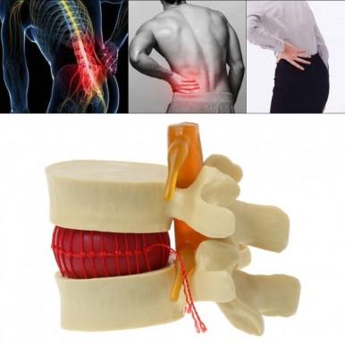 Medical Spine Lumbar Disc Herniation Model Lumbar Vertebrae Degenerative Lumbar Disc Herniation Demonstration Model Human Spine